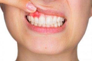 Cách trị sưng nướu răng hiệu quả